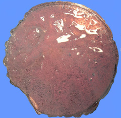 photograph of encapsulated islets